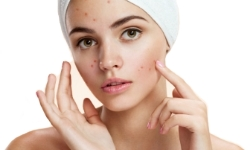 acne-s
