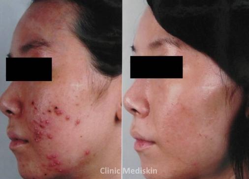 Active acne breakout