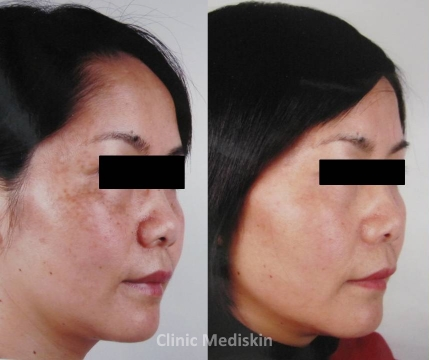 Uneven skin tone with skin blemishes