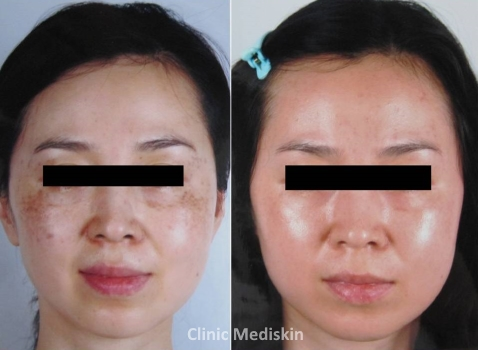 Glowing Laser - Pigmented Skin