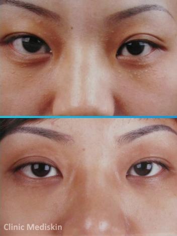 Syringoma removal