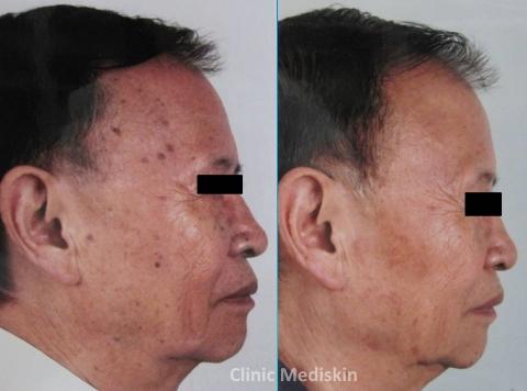 Seborrheic keratosis removal